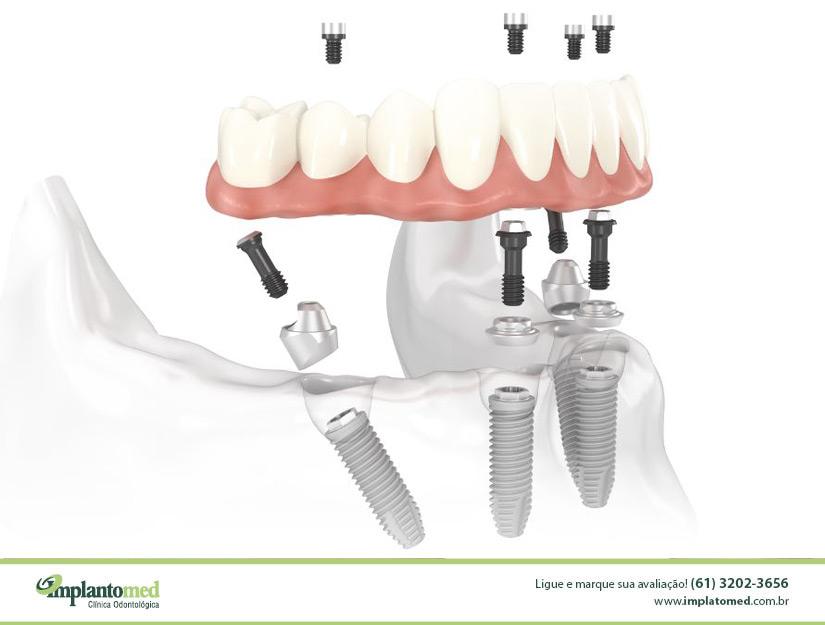 tratamento-de-protese-sobre-implante-protocolo-brenemark-brasilia