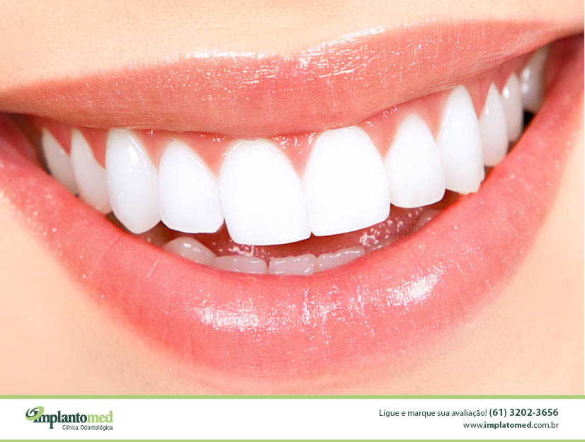 banner_blog_clareamento_dental_implantomed_brasilia_odontologia4