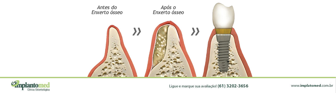 enxerto-osseo-embrasilia-implante-dentario-implantomed