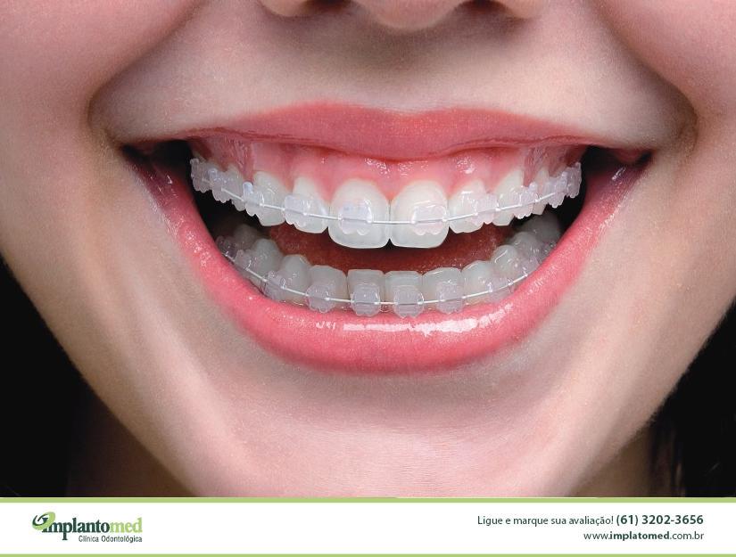 As principais vantagens da ortodontia com o Aparelho de Safira são a rapidez do tratamento e a estética, pois o tempo de tratamento em geral leva em média 12 meses, e os bráquetes são totalmente transparentes, com os arcos brancos. Os aparelhos quase não são vistos à uma distância superior a 1 metro.