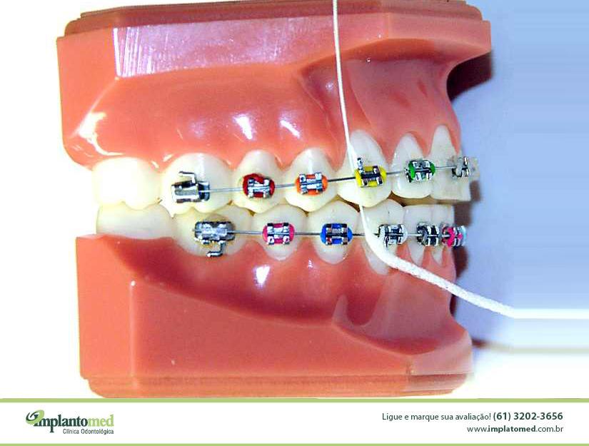 O passador de fio dental tem aplicação para ortodontia e para prótese fixa. É um importante aliado para fazer uma higiene oral mais completa e eliminar resíduos de alimentos que porventura fiquem retidos entre os dentes. O Passador de fio dental, também chamado de passa-fio é um dispositivo semelhante a uma agulha de costura em que você irá inserir o fio dental no orifício presente no passa-fio e utilizará a ponta do passador de fio para que ela atravesse o espaço entre os dentes e o arco ortodôntico.