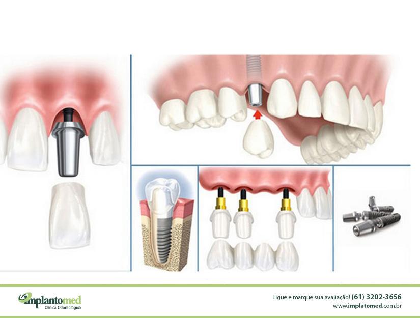 Saiba tudo sobre Implantes Dentários na Asa Sul
