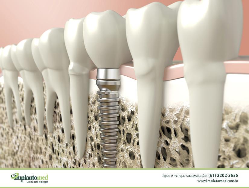 A clínica odontológica Implantomed, que fica na W3 Sul na Asa Sul, é especializada em Implante Dentário em Brasília e explica como funciona esse tratamento