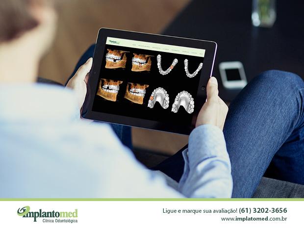 Essa técnica inovadora é desenvolvida na Implantomed para instalar implantes dentários com alta precisão e segurança total com o uso do computador.