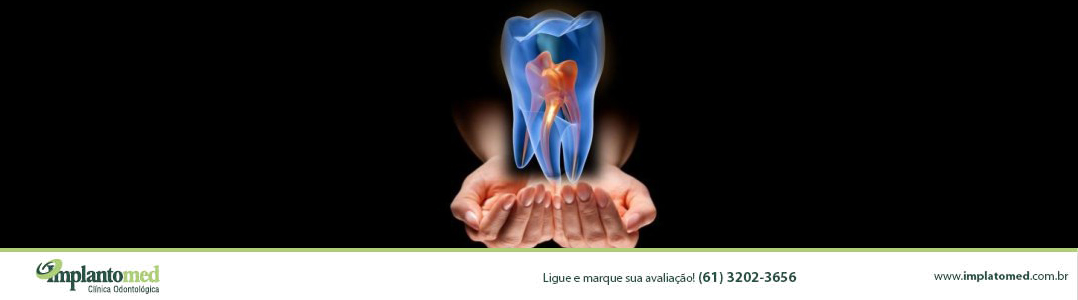 tratamento-endodontico-de-canal-em-brasilia-implantomed