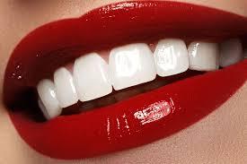 dentes com facetas