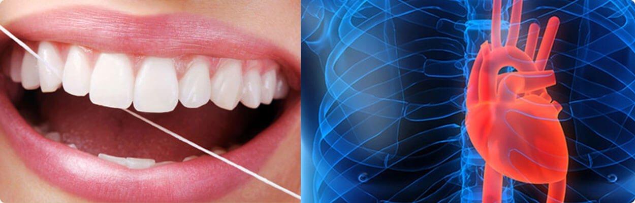 Doença periodontal na asa sul