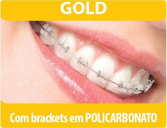 Gold com Backets em policarbonato na Implantomed df