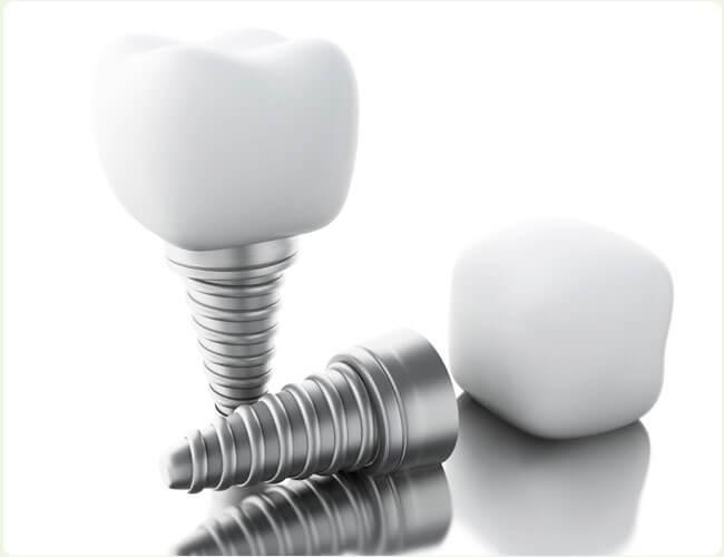 Implantes Dentários Guiados por Computador no DF