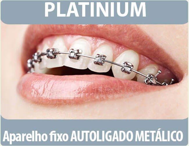 Platinum Aparelho fixo Autoligado Metalico na Implantomed DF