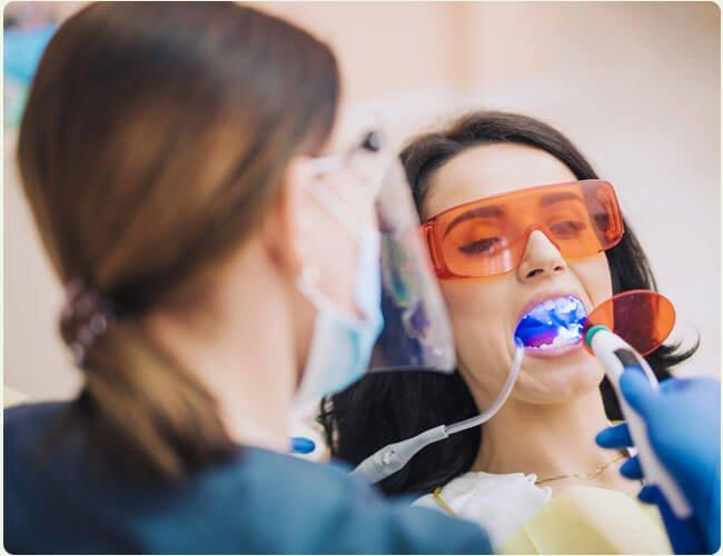 Porque fazer um clareamento dental na implantomed DF
