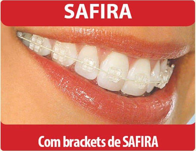 Aparelho Ortodontido de Safira na Asa Sul