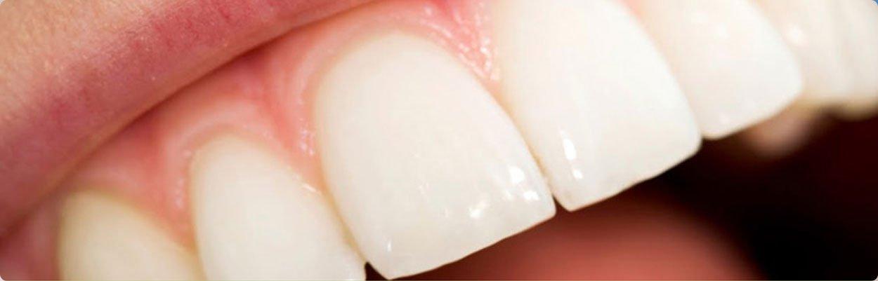 Doença periodontal tratamento em brasilia