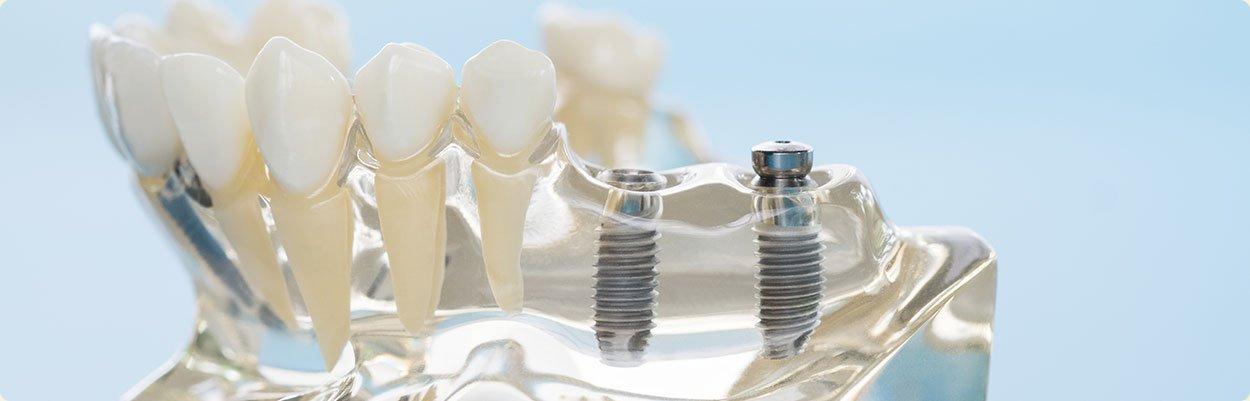 implante_implantes_dentario_dentarios_brasilia_distrito_federal-carga-direta