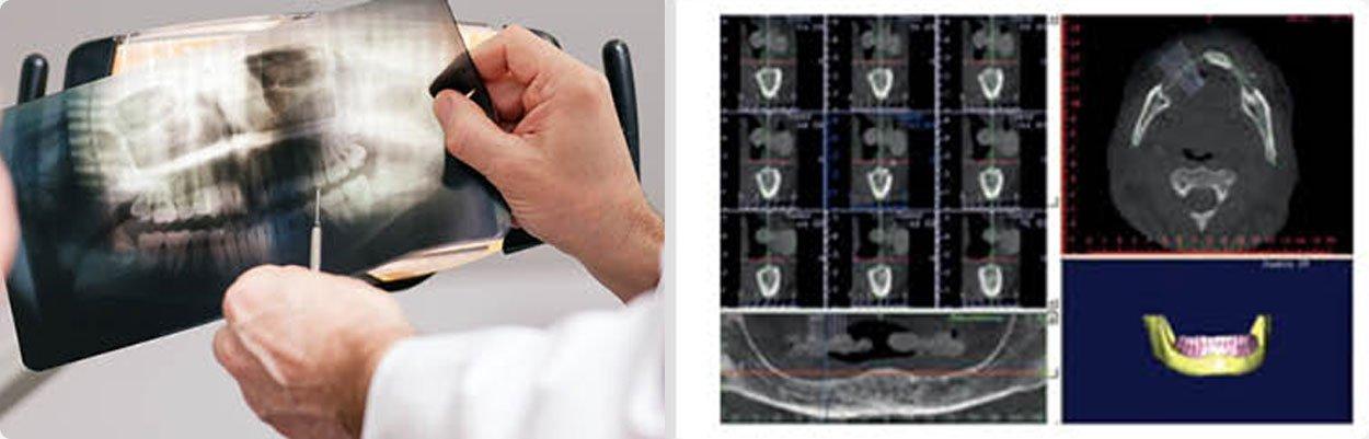 implantes dentario dentarios brasilia