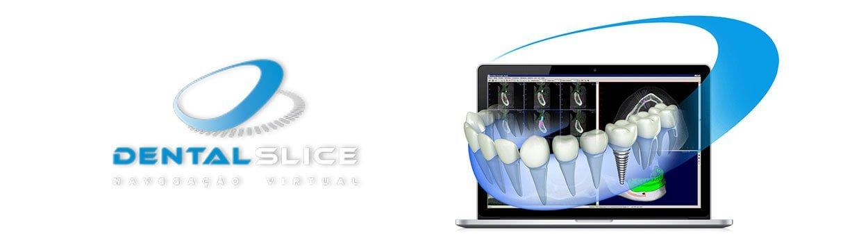 implante-dentario-brasilia-nacional-importado-neodent-straumann