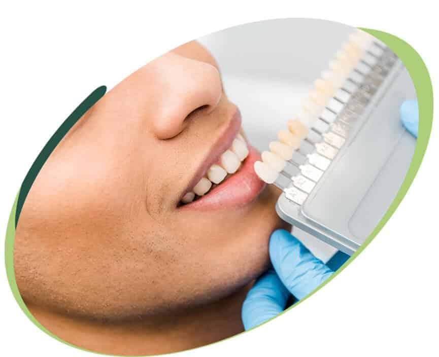 Estética Dental em Brasilia